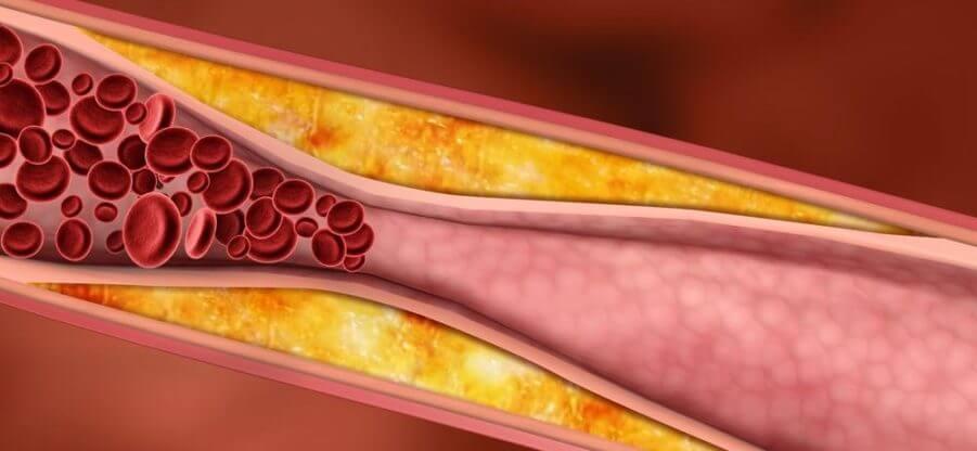 Содержание плохого холестерина в продуктах питания