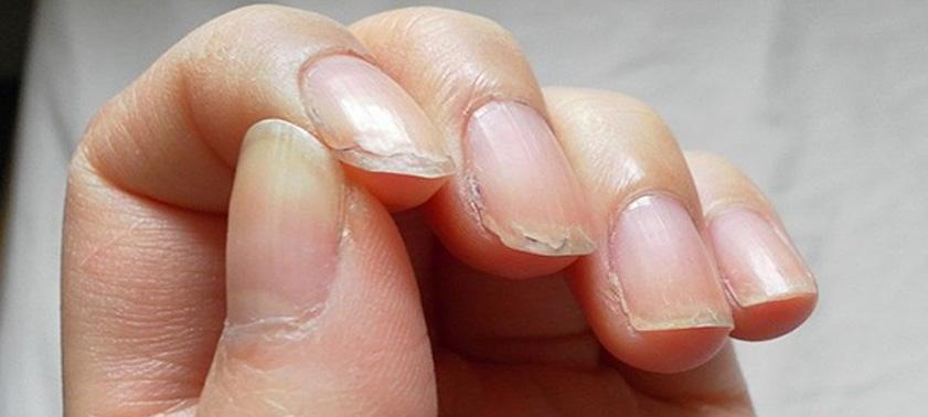 Почему слоятся и ломаются ногти и что делать?