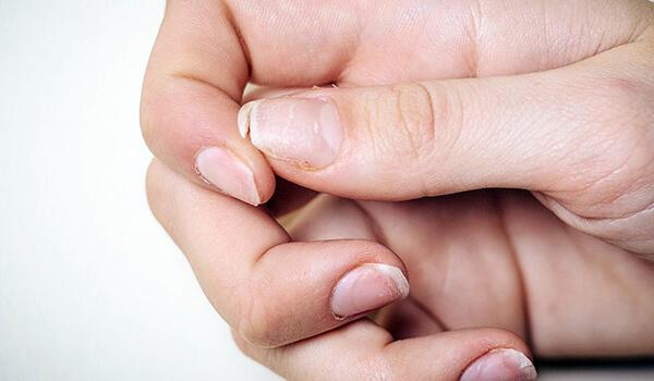 почему ломаются ногти