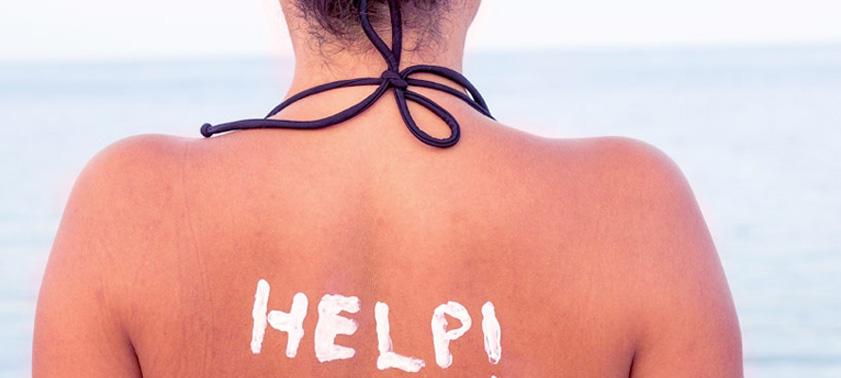 Что делать, если сгорела кожа на солнце?